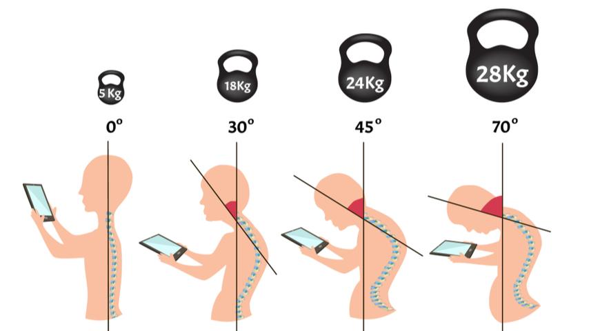17982 Что нужно сделать, чтобы спина не болела на кухне, в огороде, за компьютером и в постели